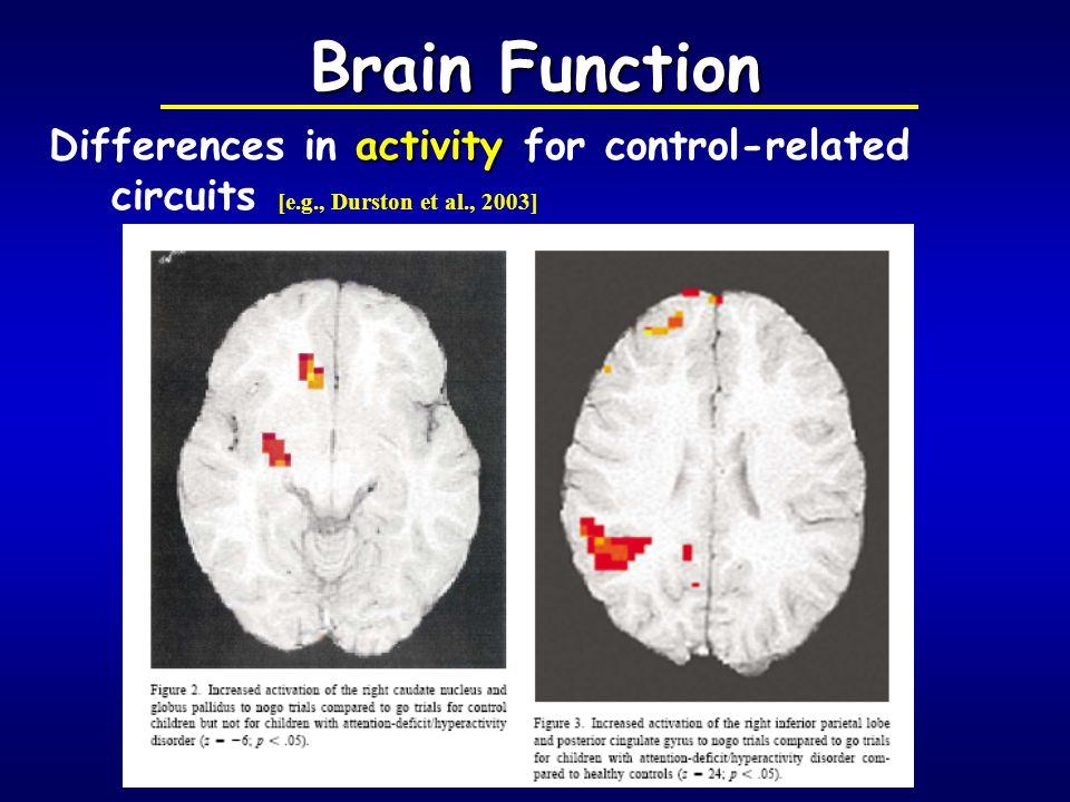 Brain Function Differences in activity for control-related circuits [e.g., Durston et al., 2003]